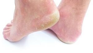 Ayak mantarına ne iyi gelir Ayak mantarı nasıl geçer ve tedavisi
