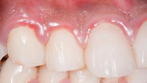 Diş eti iltihabı nasıl geçer Diş eti iltihabına ne iyi gelir