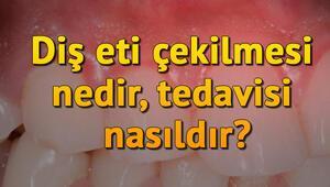 Diş eti çekilmesi nedir, tedavisi nasıldır