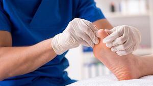 Tırnak batmasına ne iyi gelir Tırnak batması nasıl geçer ve tedavisi nasıldır