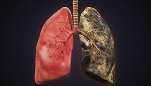 Akciğerlerinizi sigara ile söndürmeyin
