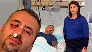 Hastanede korkunç saldırı Sağlık teknikerinin elmacık kemiği kırıldı