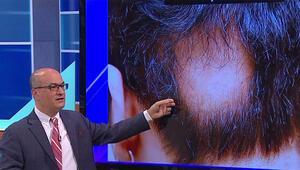 Saç kıran nasıl tedavi edilir