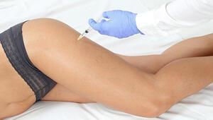 Vücut Çatlakları İçin Tedavi Yöntemleri
