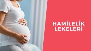 Hamilelik lekeleri neden olur Hamilelik lekeleri nasıl giderilir