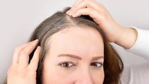 Bilim insanları stresin saçları nasıl beyazlattığını açıkladı