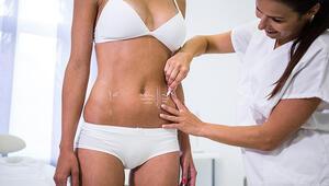 Liposuction İle Üç Boyutlu Vücut Şekillendirme