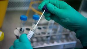 Corona virüsünde ölü sayısı yükseliyor Corona virüsü aşısı ne zaman bulunacak Coronavirüs tedavisi var mı