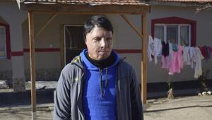 Yüzündeki yanık izleri nedeniyle evden çıkamayan Miraç, tedavi olmak istiyor