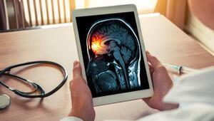 Beyinleri küçük olanlar antisosyal davranış bozuklukları gösteriyor