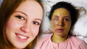 21 yaşında hayatı karardı 10 aylık eşi dehşet saçtı...