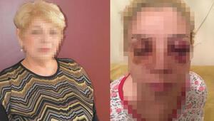 Şizofreni hastası onun da gözlerini oymaya çalışmış Burcu o anları anlattı…