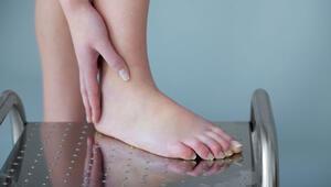 Ayak şişmesine ne iyi gelir Ayak şişmesi neden olur ve nasıl geçer