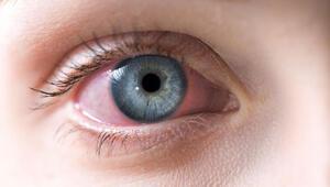 Göz kızarıklığına ne iyi gelir Göz kızarıklığı nasıl geçer ve neden olur