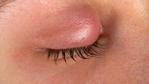 Göz şişliğine ne iyi gelir Göz şişliği nasıl geçer ve neden olur