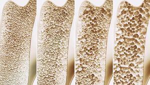 Kemik erimesine ne iyi gelir Kemik erimesi neden olur
