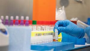Fasta koronavirüsü vakası 6ya yükseldi