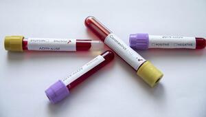 Kenyada ilk corona virüs vakası görüldü