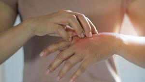 Koronavirüs önlemleri el egzamasına yol açabilir