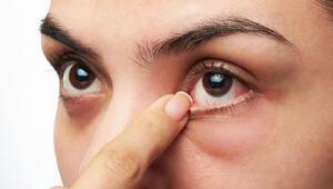 Gözlerinizdeki bu belirtiler koronavirüsün işareti olabilir