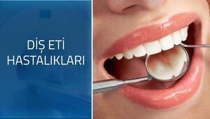 Diş eti hastalıklarının belirtileri nelerdir