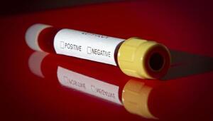 Koronavirüs ile ilgili dünyayı şoke eden iddia: ABD ve Çin finanse etti