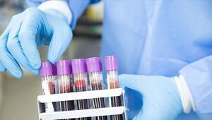 Kovid-19 tedavisinde alternatif yeni bir etken madde geliştirdi