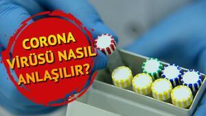 Corona virüsü belirtileri nelerdir, nasıl bulaşır Koronavirüs baş ağrısı yapar mı İşte korona virüs belirti takvimi