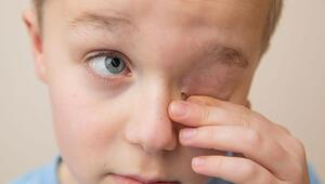Karantinada çocuğunuzun gözünü koruyun