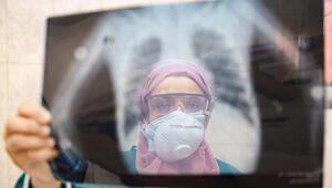 Sağlık Bakanlığından uyarı: Koronada oruca dikkat