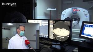 Akciğer tomografisiyle erken teşhis, kovide bağlı ölümleri azalttı