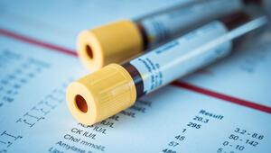 AFP testi nedir AFP değeri kaç olmalıdır Düşüklüğü ile yükseliği nedenleri ve belirtileri