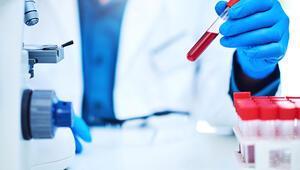 EO nedir EO kan değeri kaç olmalıdır Düşüklüğü ile yüksekliği nedenleri ve belirtileri