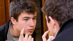 Sınav stresi yüzünden oluşan akne ve sivilcelerle nasıl baş edilir