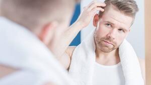 Saçkıran tedavisi nasıldır