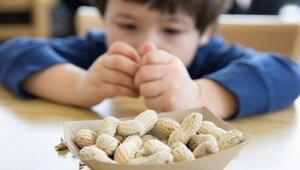 Her 13 çocuktan 1'inde besin alerjisi görülüyor