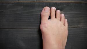 Ayaklarda şişlik neden oluşur