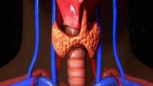 Tiroid kanserinin belirtileri nelerdir