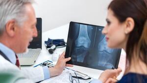 Osteoporoz (kemik erimesi) nedir Belirtileri ve tedavisi