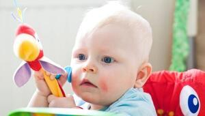 Bebek ve çocuklarda egzama nedenleri ve tedavisi