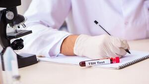 TSH yüksekliği neden olur Belirtileri ve tedavisi