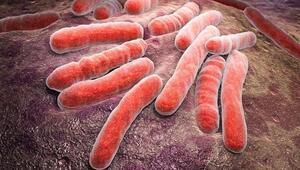 Her yıl 10 milyon kişiye tüberküloz tanısı konuluyor