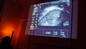 Rahim filmi nedir, hamilelik şansını arttırır mı