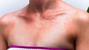 Güneş etkisini gösterdi, deri hastalıkları arttı