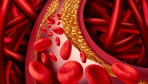 Yüksek kolesterol damarları tehdit ediyor