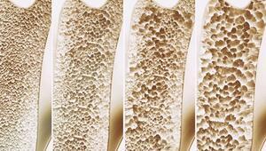 Kemik erimesi neden olur, nasıl önlenir