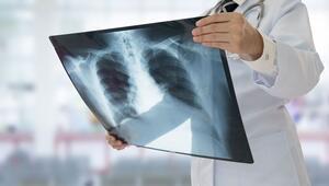 Akciğer kanserinin görülme sıklığı yaşla birlikte artıyor