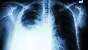 Akciğer kanserinin belirtileri nelerdir