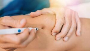 Kas ağrılarına ameliyatsız çözüm: Proloterapi tedavisi