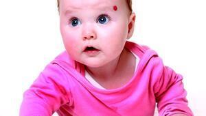 Doğum lekesi neden olur Doğum lekesi çeşitleri